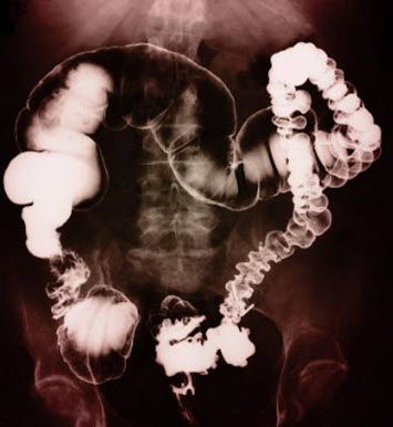 Colon Irrigation, Colonic Hydrotheapy